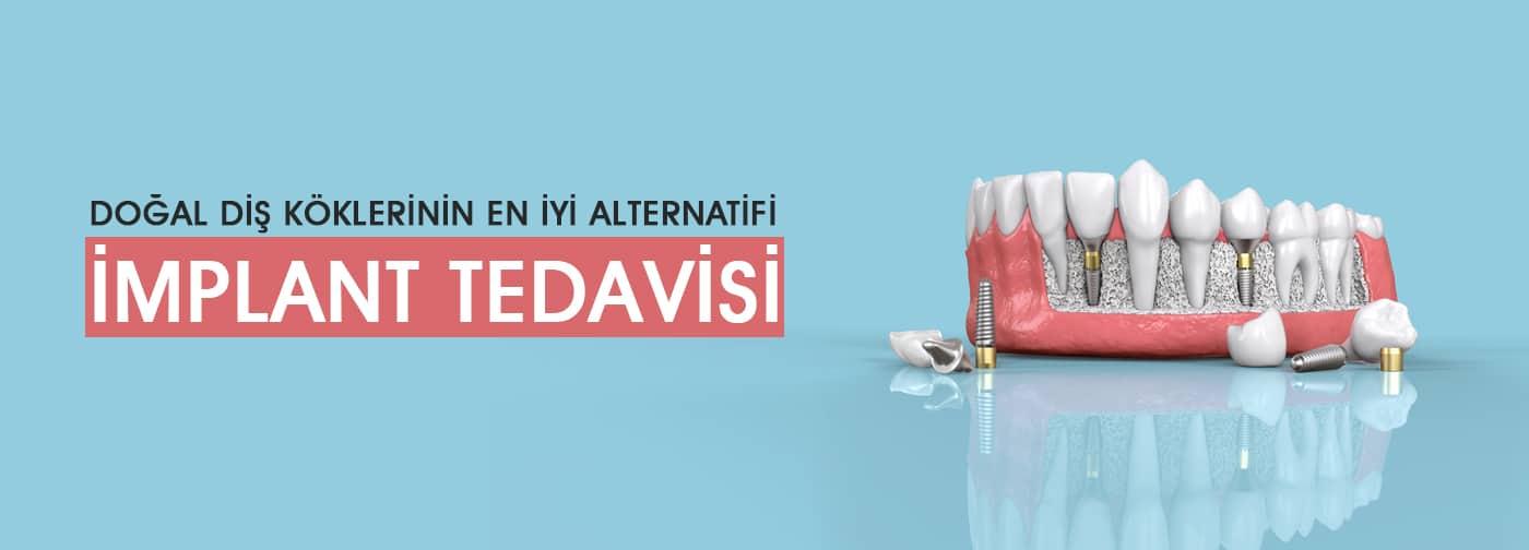 Beşiktaş İmplant Diş Hekimi