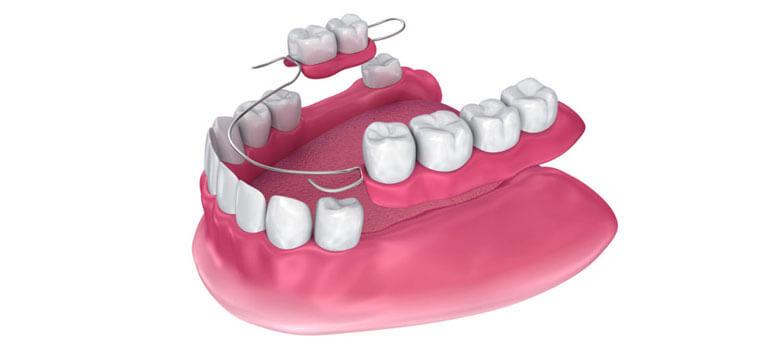 hareketli diş protezleri