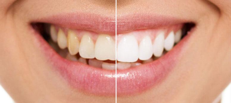 laminate veneer öncesi ve sonrası