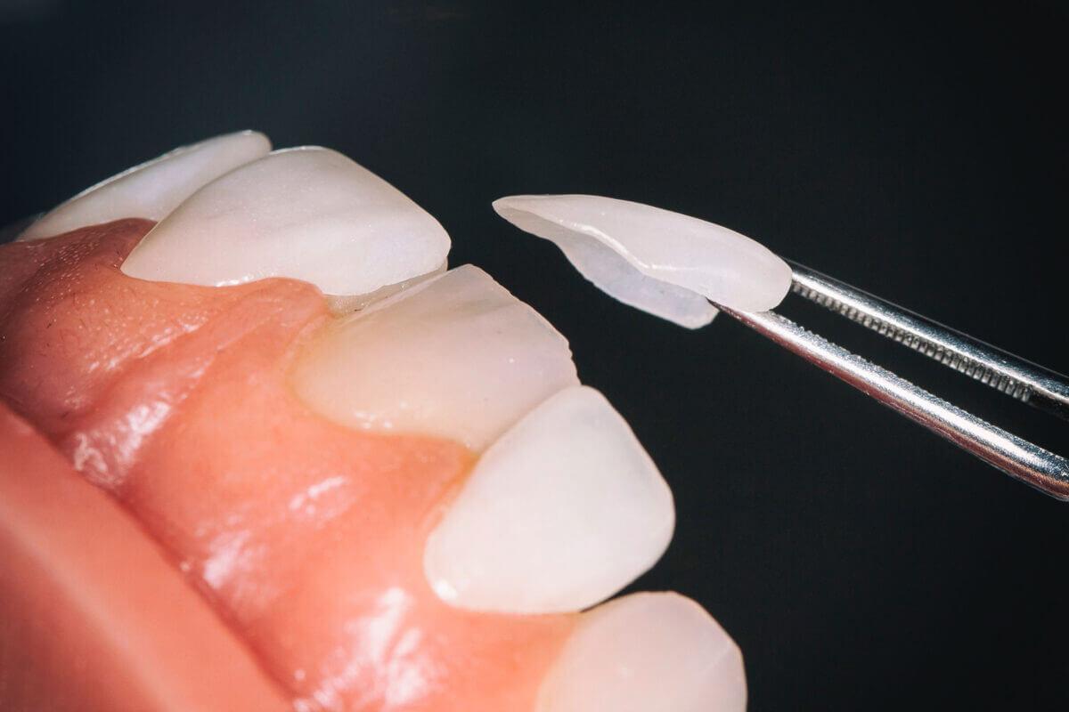 lamine yaprak diş kaplama